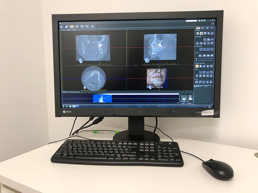 3D Röntgen (DVT) Beispielschnitte bei medi+ zahnärztliche Praxisklinik, MKG-Chirurgie