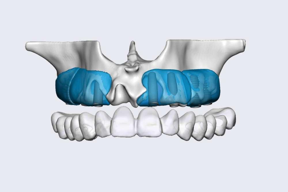 Knochenaufbau schematisch - medi+ - Foto: Botiss