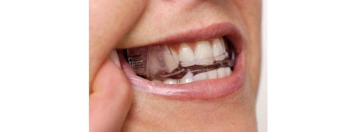 Schnarcherschiene im Mund - Bild: Somnomed