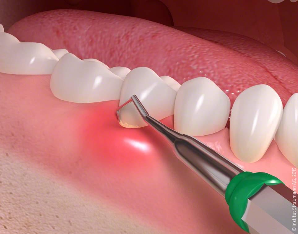 Behandlung von Parodontitis - medi+ - Foto: Straumann