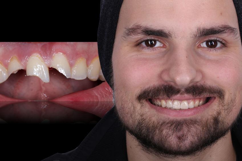 Eishockey - Zähne vorher - nachher - Bild: DGSZM